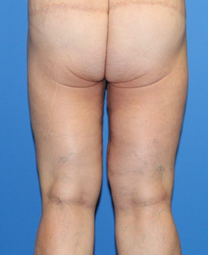 Thigh Lift Before & After Patient #4185