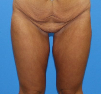Thigh Lift Before & After Patient #4190