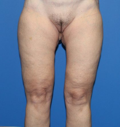 Thigh Lift Before & After Patient #4193
