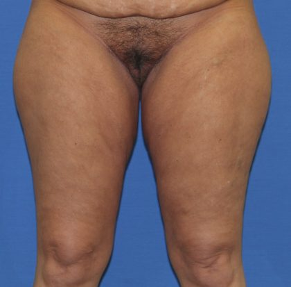 Thigh Lift Before & After Patient #4199