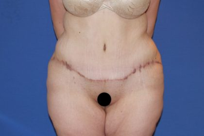 Extended Tummy Tuck Before & After Patient #3246