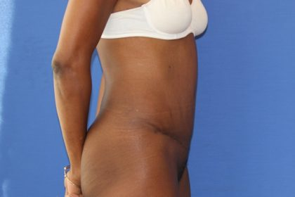 Tummy Tuck Before & After Patient #3239