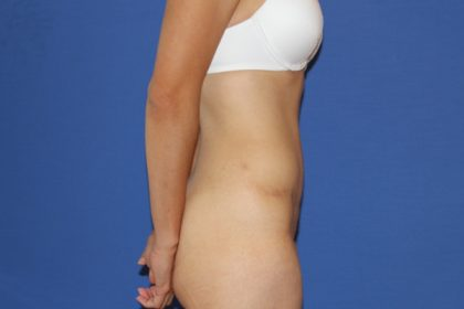 Tummy Tuck Before & After Patient #3253
