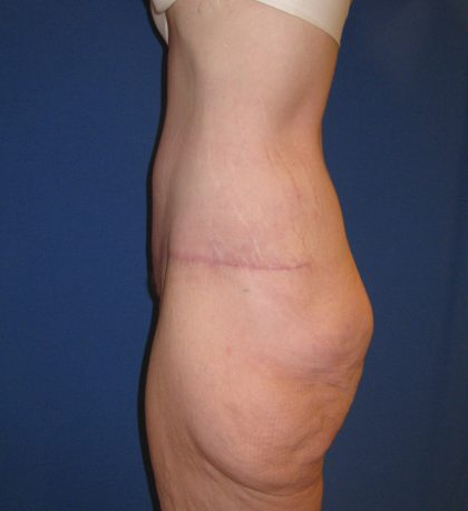 Tummy Tuck Before & After Patient #3373
