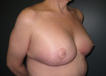 Breast Lift Before & After Patient #3430