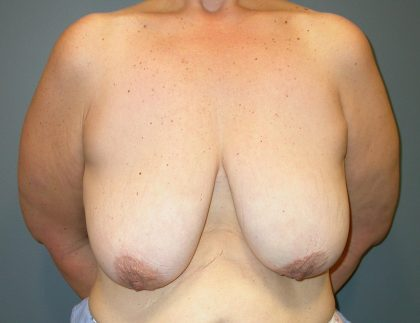 Breast Lift Before & After Patient #3422