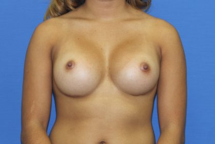 Breast Augmentation Before & After Patient #2658