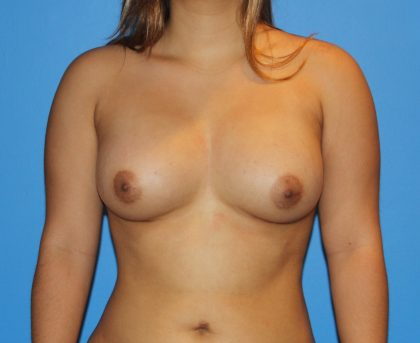 Breast Augmentation Before & After Patient #2693