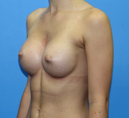 Breast Augmentation Before & After Patient #2714