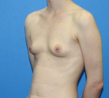 Breast Augmentation Before & After Patient #2700