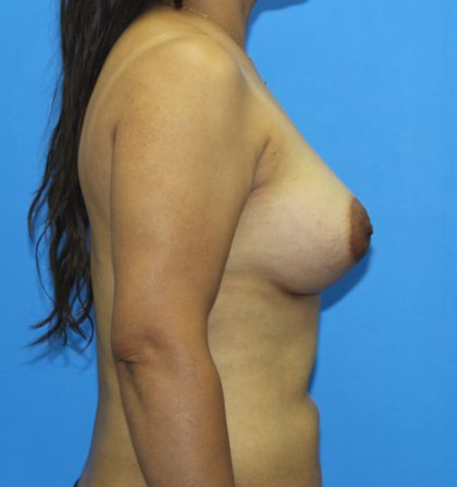 Breast Augmentation Before & After Patient #2665
