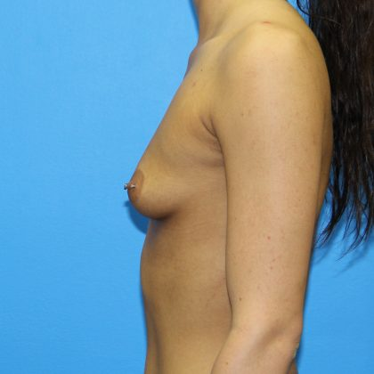 Breast Augmentation Before & After Patient #2672