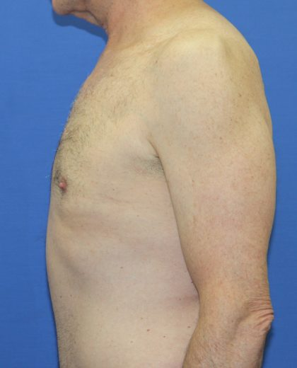 Tummy Tuck Before & After Patient #2870