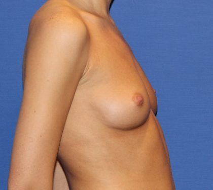 Breast Augmentation Before & After Patient #2749