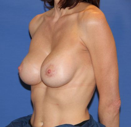 Breast Augmentation Before & After Patient #2756