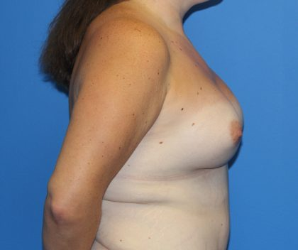 Breast Augmentation Before & After Patient #2763