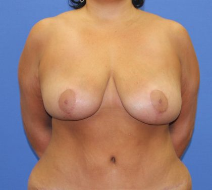 Breast Reduction Before & After Patient #2818