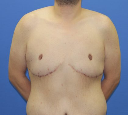 Tummy Tuck Before & After Patient #2915