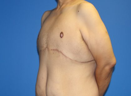 Gynecomastia Before & After Patient #2921