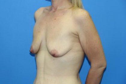 Tummy Tuck Before & After Patient #3097