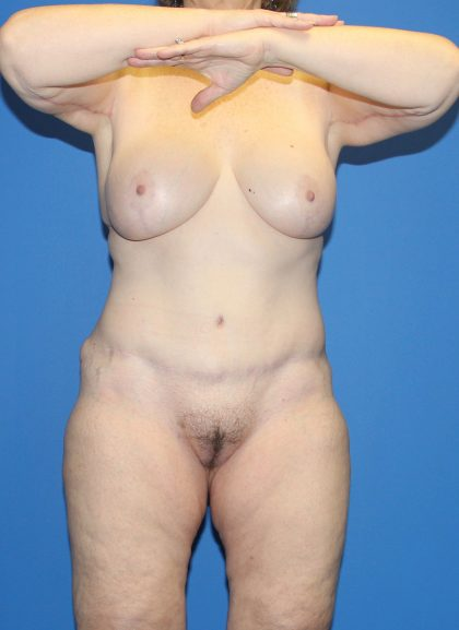 Tummy Tuck Before & After Patient #4278