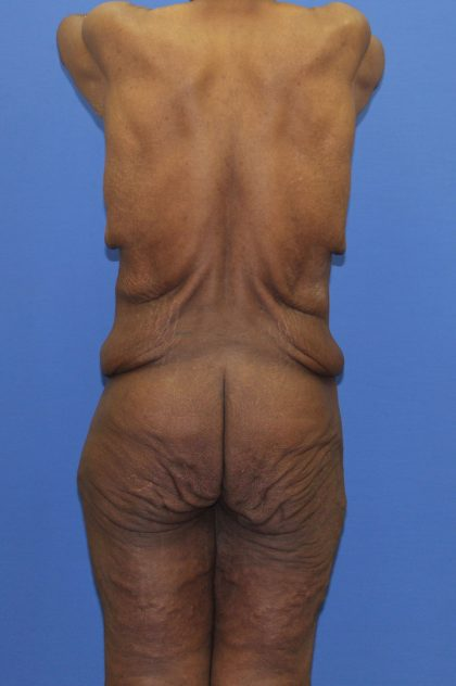 Lower Body Lift Before & After Patient #4286