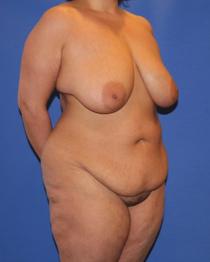 Tummy Tuck Before & After Patient #4295