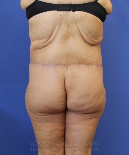 Lower Body Lift Before & After Patient #4431