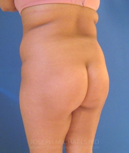 Buttock Augmentation Before & After Patient #4451