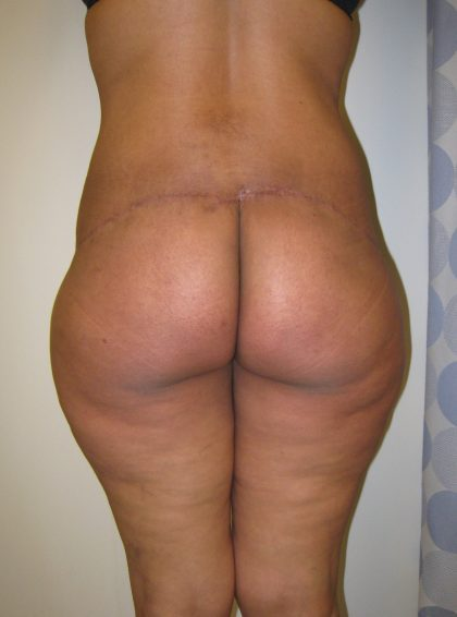 Lower Body Lift Before & After Patient #4377