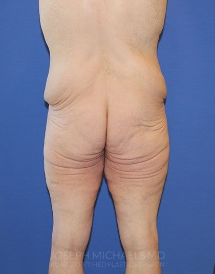 Lower Body Lift Before & After Patient #4442
