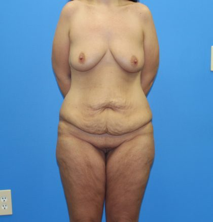 Lower Body Lift Before & After Patient #4421