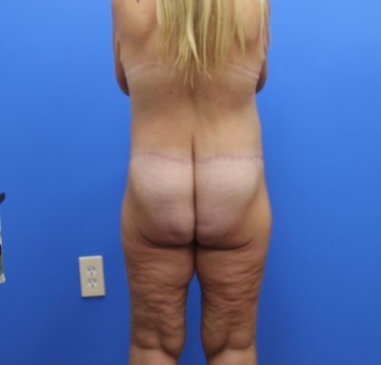 Lower Body Lift Before & After Patient #4359