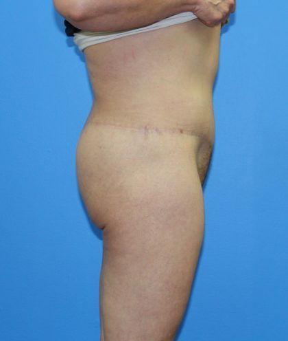 Lower Body Lift Before & After Patient #4368
