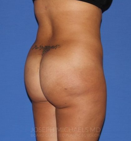 Buttock Augmentation Before & After Patient #4458